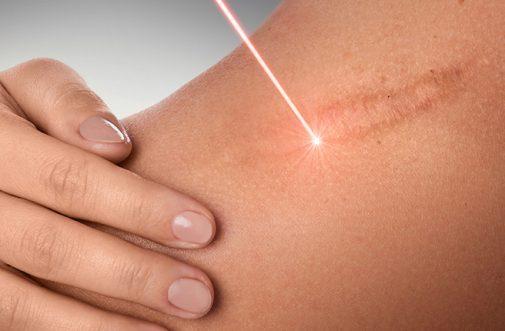 Keloid laser treatment in sharjah