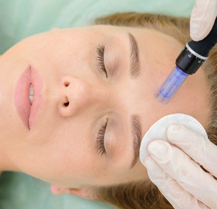 Micro-needling treatment in sharjah