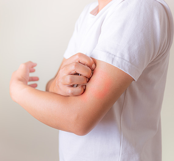 Person having skin infection