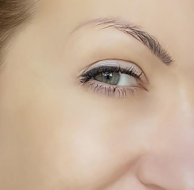 Woman undergone anti-wrinkle treatment