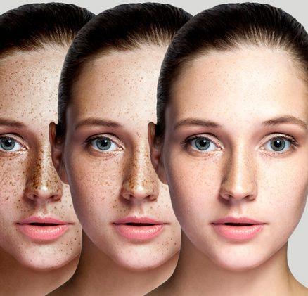 skin pigmentation treatment sharjah