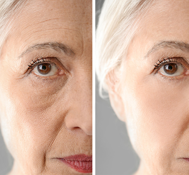 anti ageing treatment sharjah